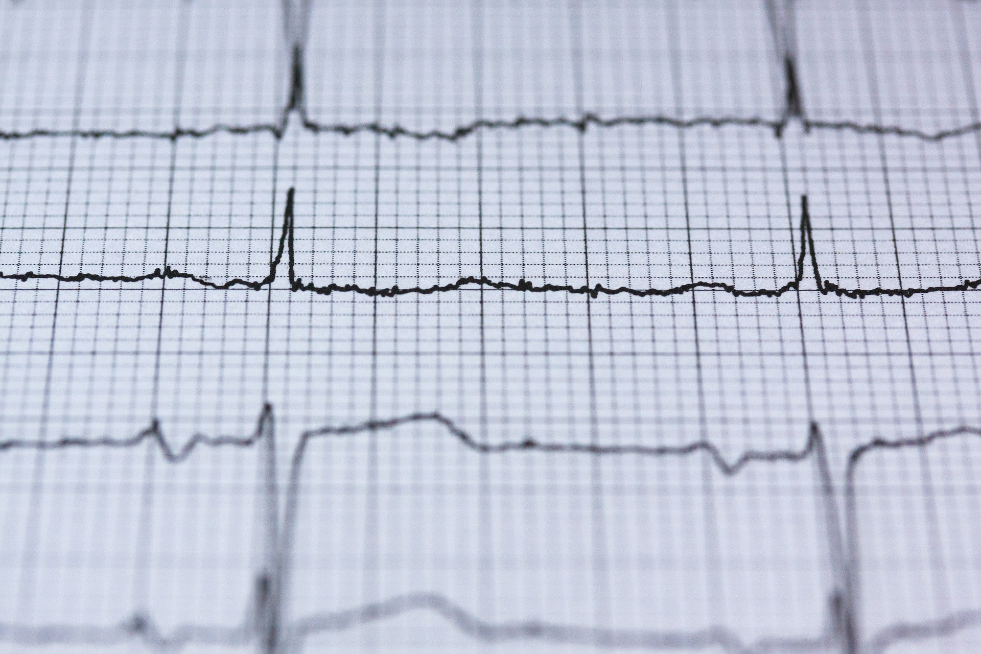 Physicians for Safe Technology | Cardiac Effects of Radiofrequency